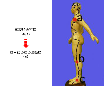 図1-13 下腿外側打撲後の胆経上に出現した異常